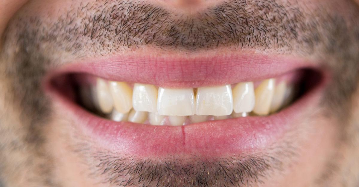 Primer plano de una boca de hombre con barba apretando los dientes.