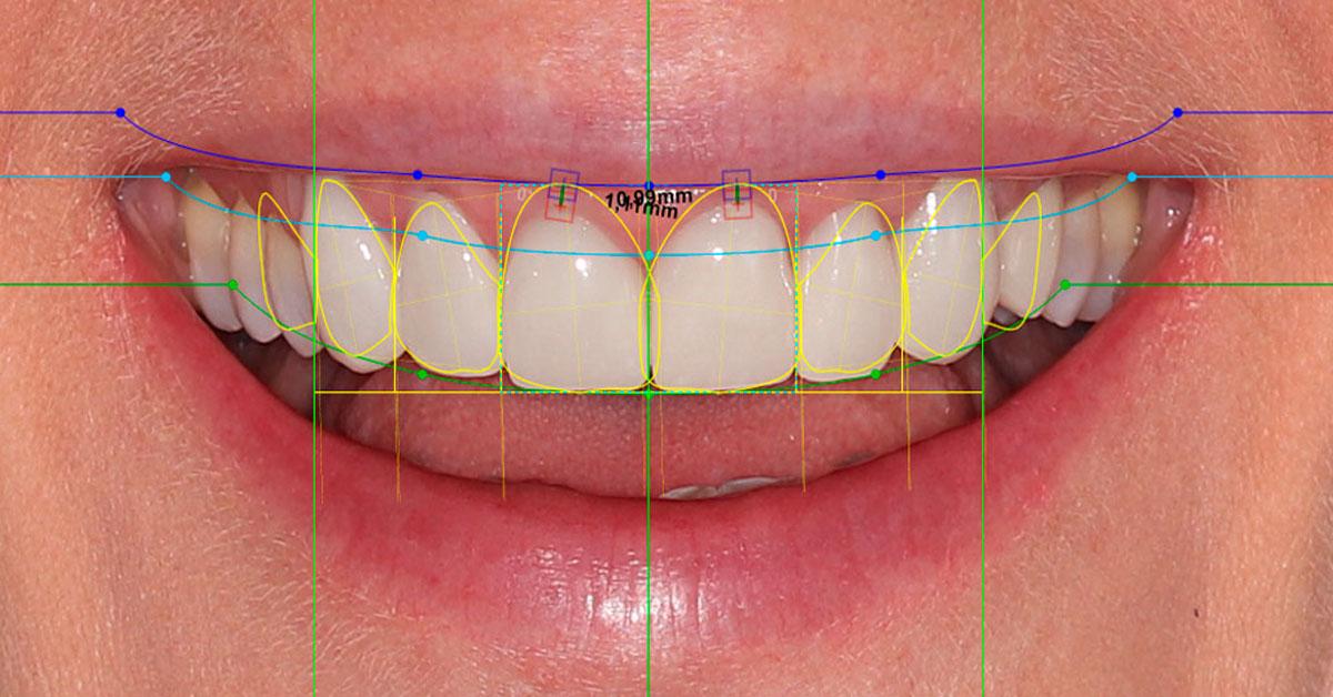 Diseño digital de la sonrisa.