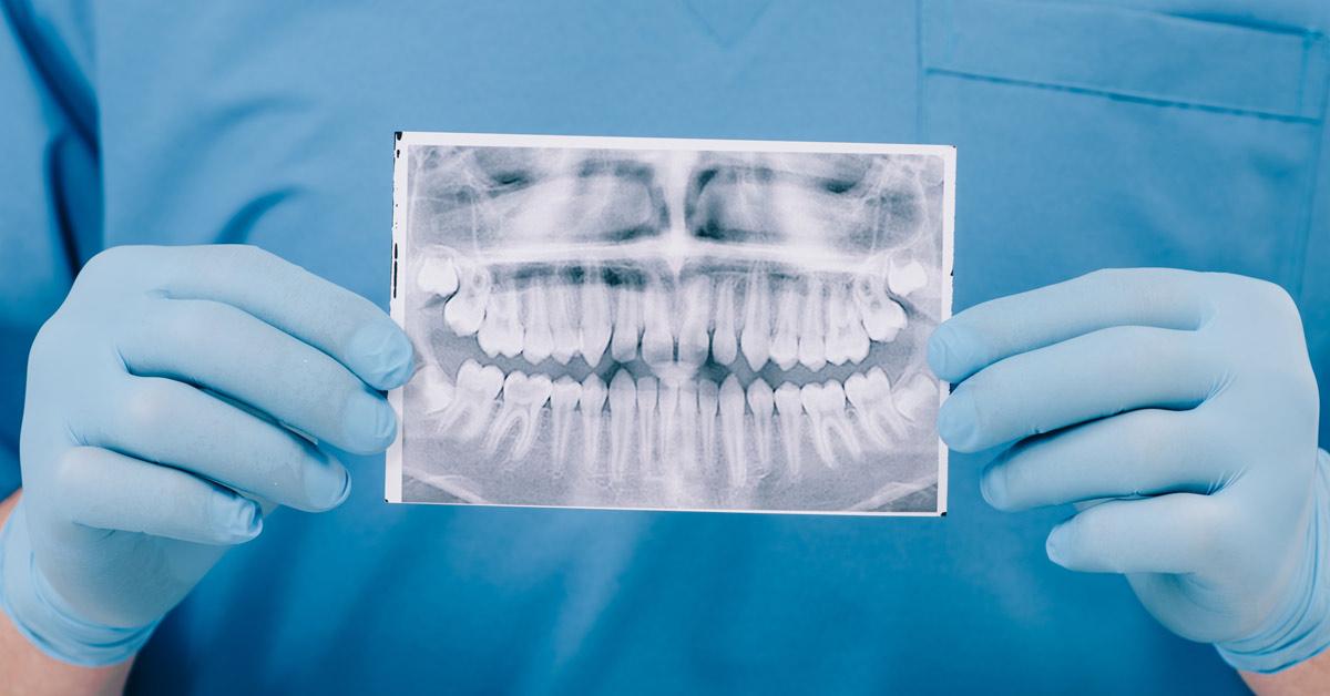Hombre dentista sosteniendo una radiografía dental.